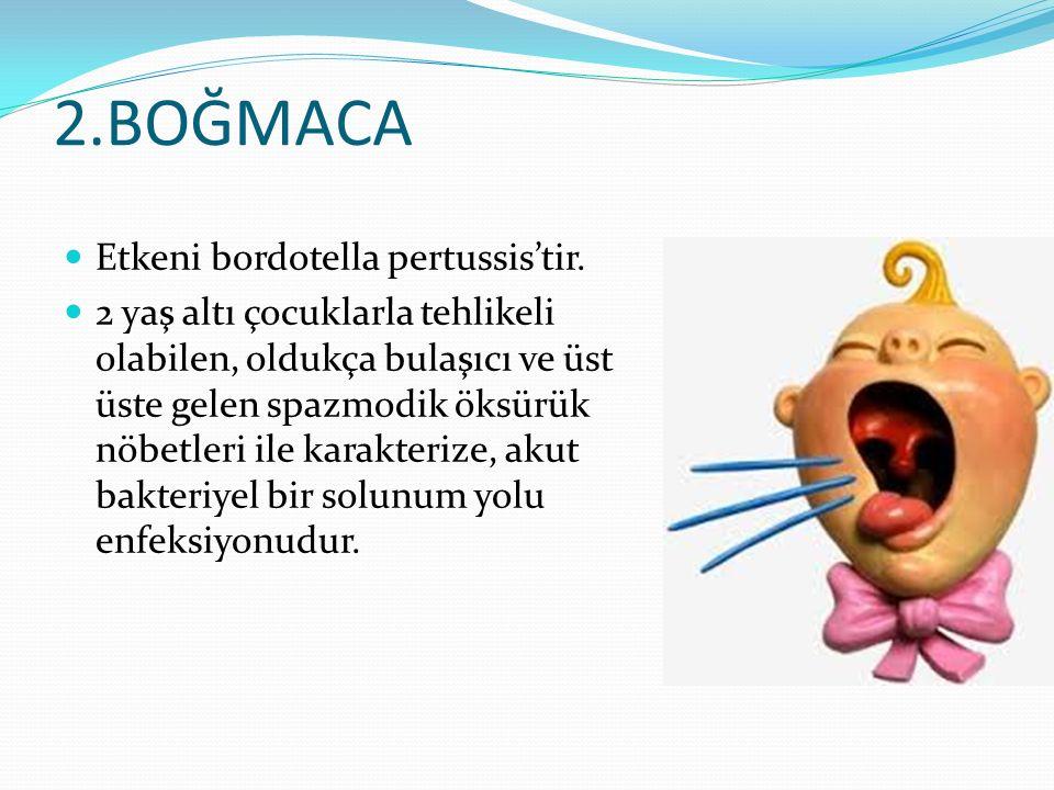 2.BOĞMACA Etkeni bordotella pertussis'tir.