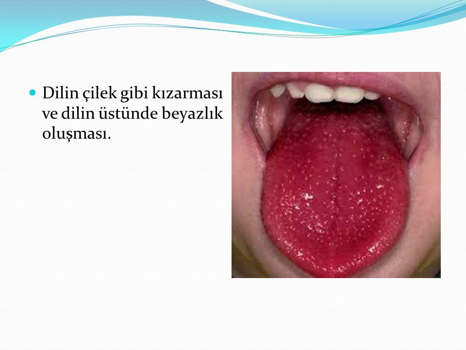 Dilin çilek gibi kızarması ve dilin üstünde beyazlık oluşması.