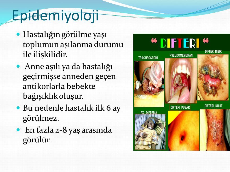 Epidemiyoloji Hastalığın görülme yaşı toplumun aşılanma durumu ile ilişkilidir.
