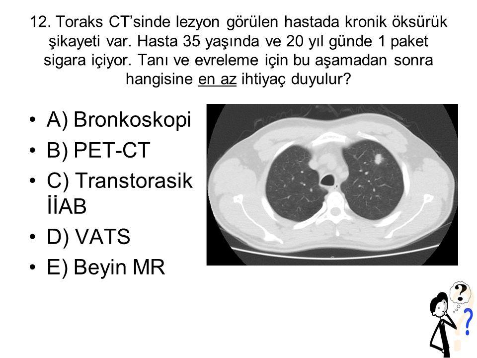 A) Bronkoskopi B) PET-CT C) Transtorasik İİAB D) VATS E) Beyin MR