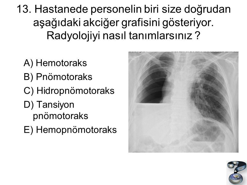 13. Hastanede personelin biri size doğrudan aşağıdaki akciğer grafisini gösteriyor. Radyolojiyi nasıl tanımlarsınız