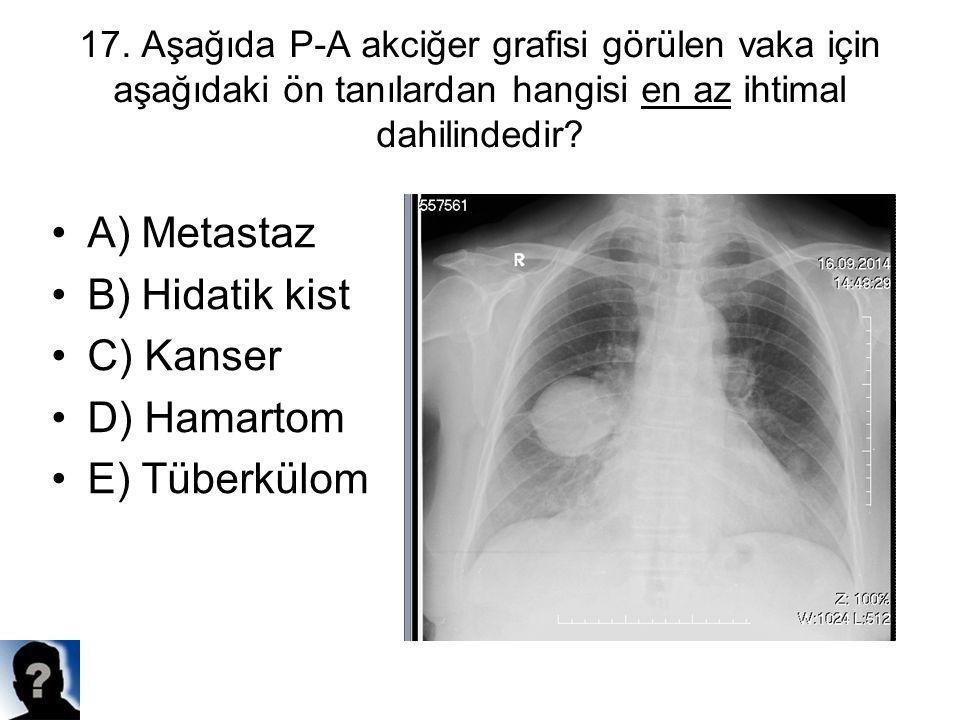A) Metastaz B) Hidatik kist C) Kanser D) Hamartom E) Tüberkülom