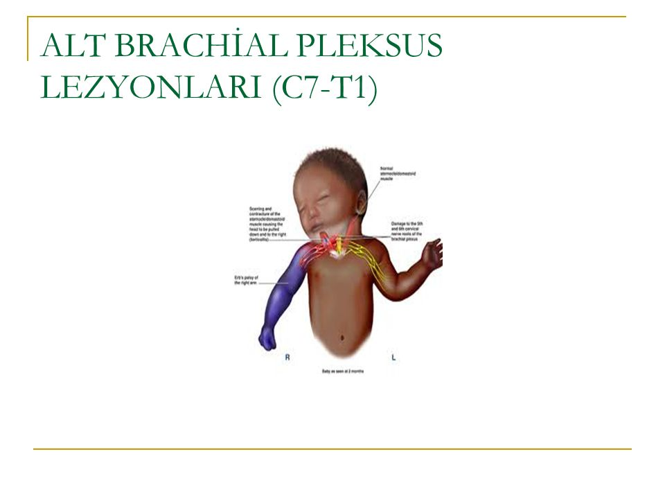 ALT BRACHİAL PLEKSUS LEZYONLARI (C7-T1)