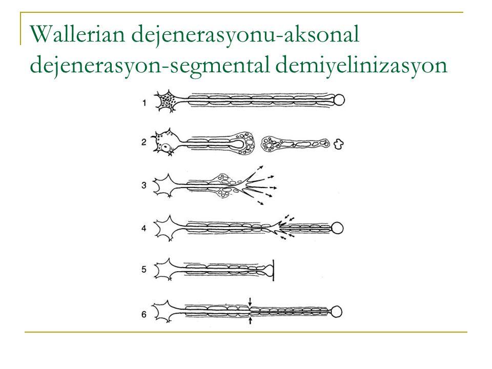 Wallerian dejenerasyonu-aksonal dejenerasyon-segmental demiyelinizasyon