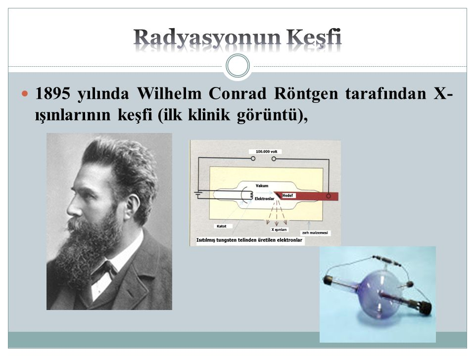 Radyasyonun Keşfi 1895 yılında Wilhelm Conrad Röntgen tarafından X-ışınlarının keşfi (ilk klinik görüntü),