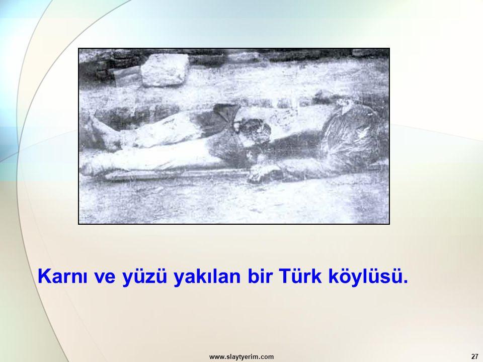 Karnı ve yüzü yakılan bir Türk köylüsü.