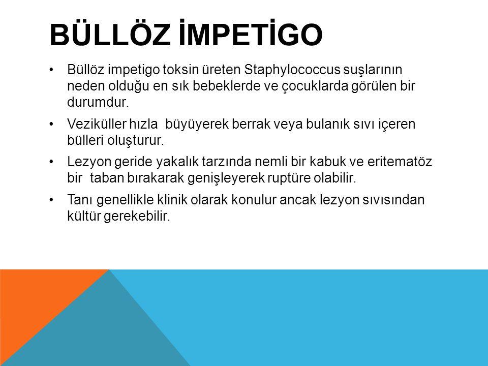 Büllöz İmpetİgo Büllöz impetigo toksin üreten Staphylococcus suşlarının neden olduğu en sık bebeklerde ve çocuklarda görülen bir durumdur.