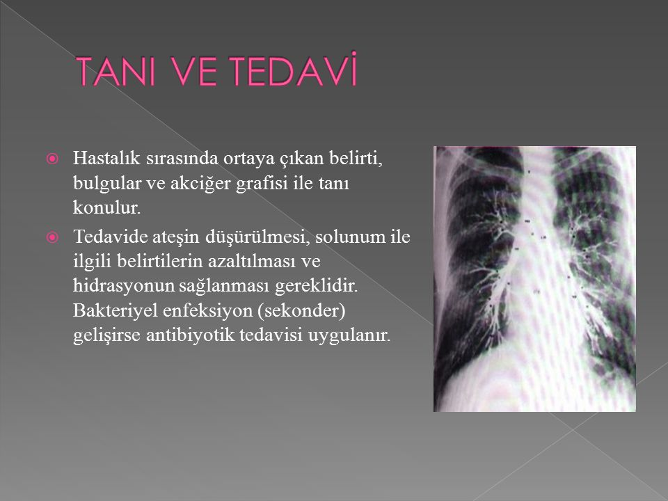 TANI VE TEDAVİ Hastalık sırasında ortaya çıkan belirti, bulgular ve akciğer grafisi ile tanı konulur.