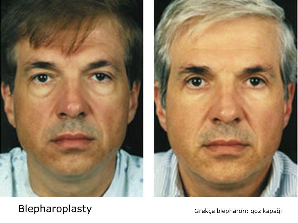 Blepharoplasty Grekçe blepharon: göz kapağı