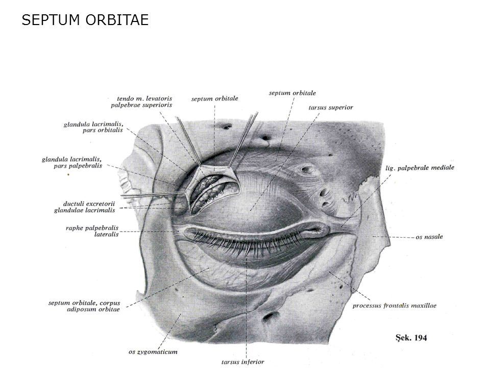 SEPTUM ORBITAE