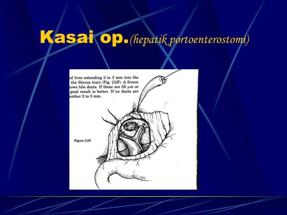Kasai op.(hepatik portoenterostomi)