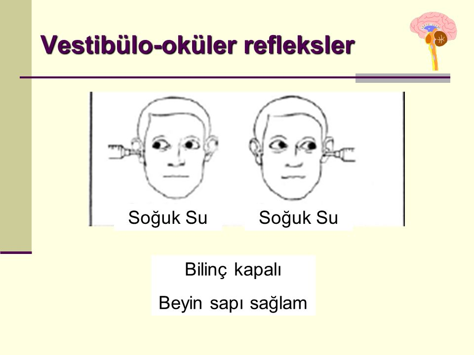 Vestibülo-oküler refleksler