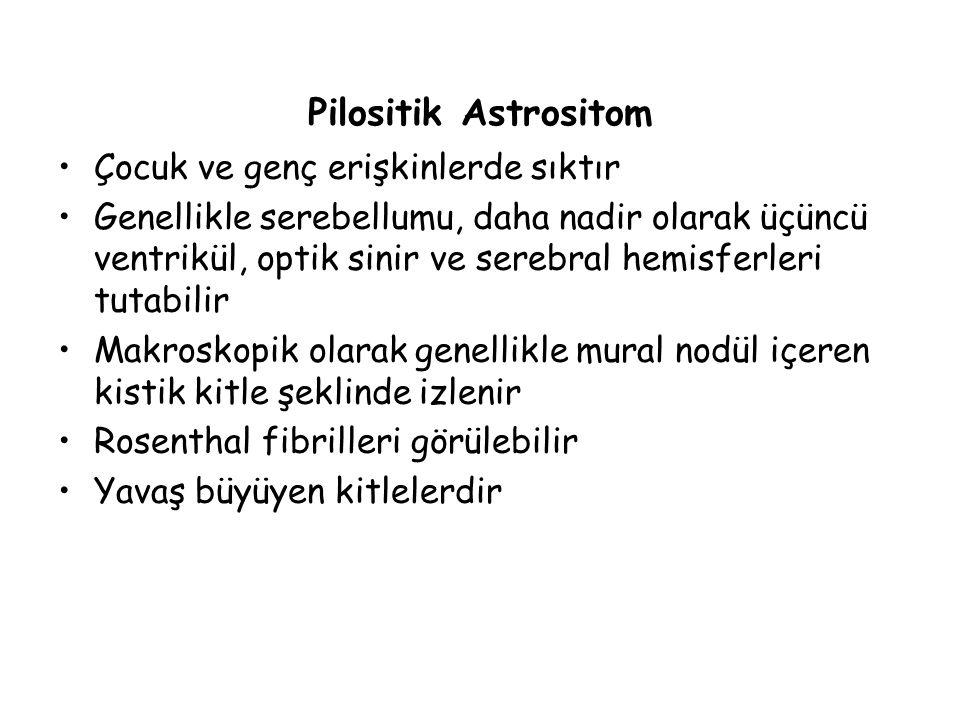 Pilositik Astrositom Çocuk ve genç erişkinlerde sıktır
