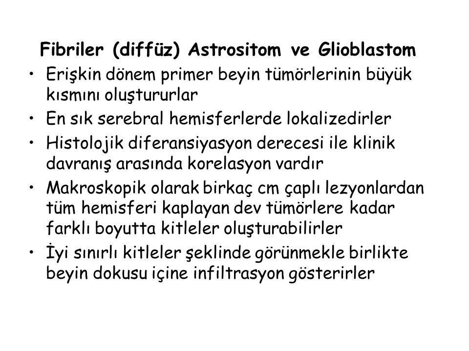 Fibriler (diffüz) Astrositom ve Glioblastom