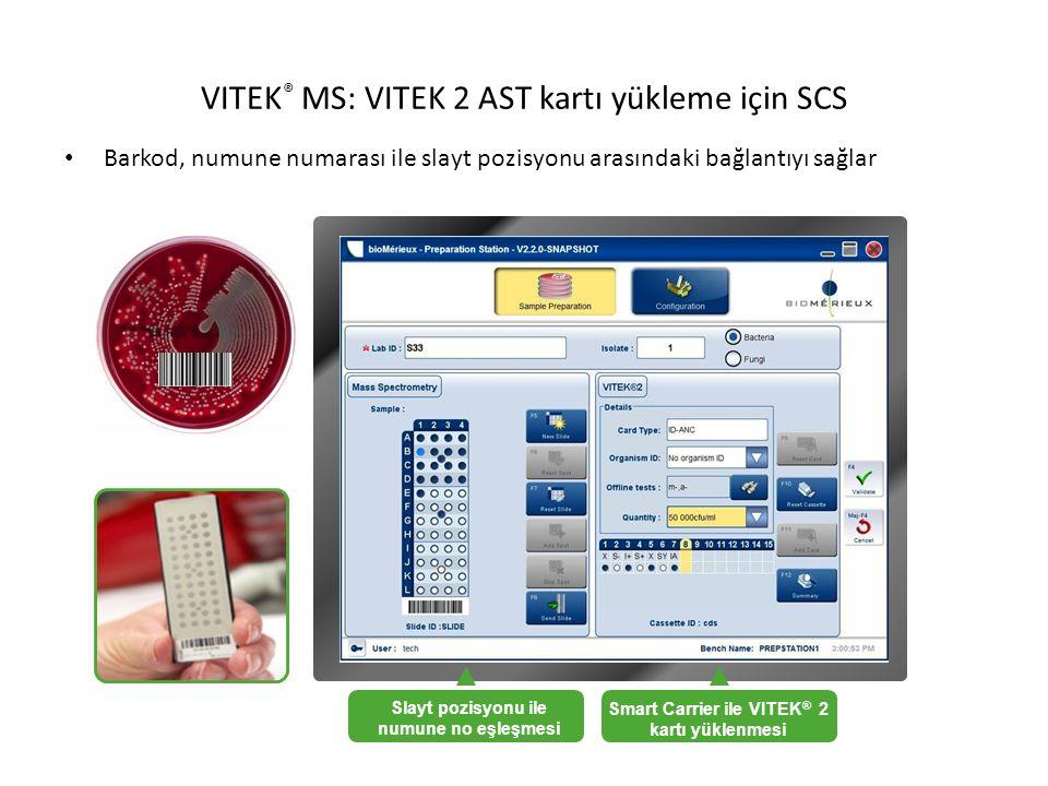 VITEK® MS: VITEK 2 AST kartı yükleme için SCS