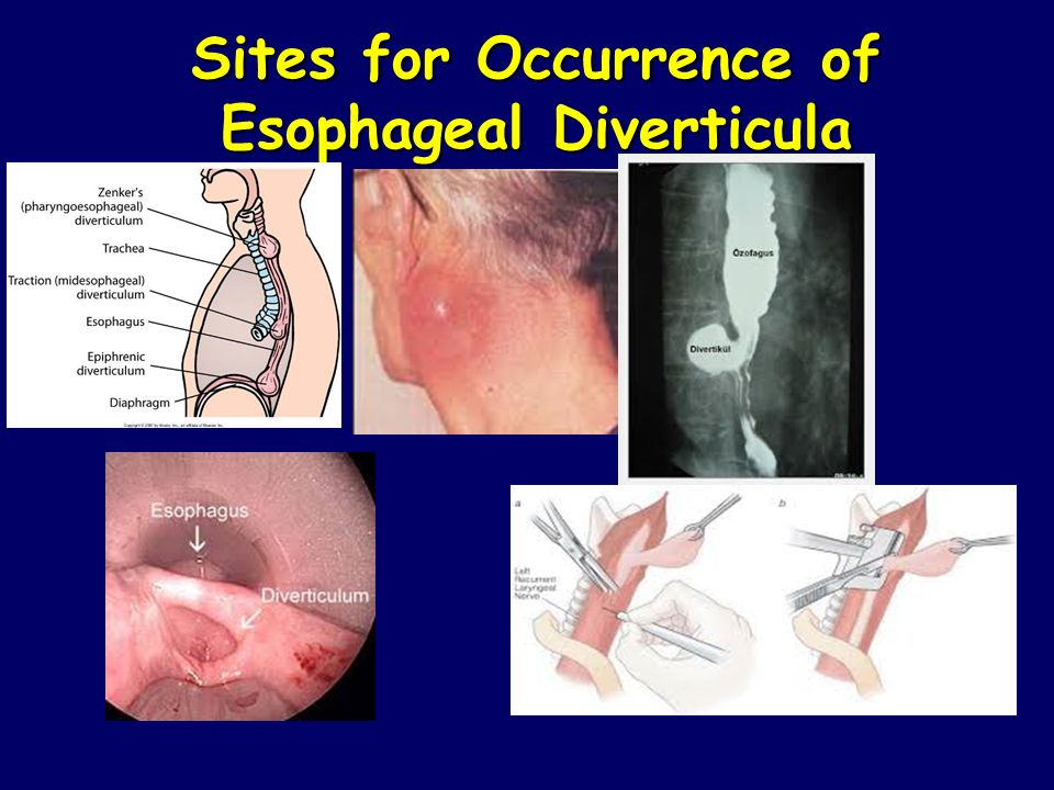 Sites for Occurrence of Esophageal Diverticula