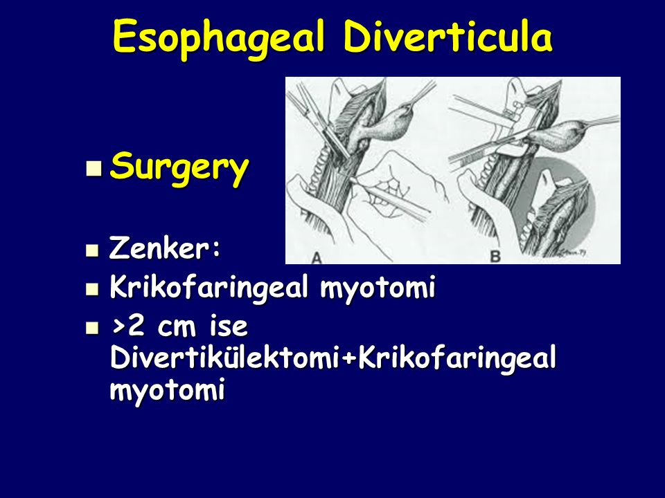 Esophageal Diverticula