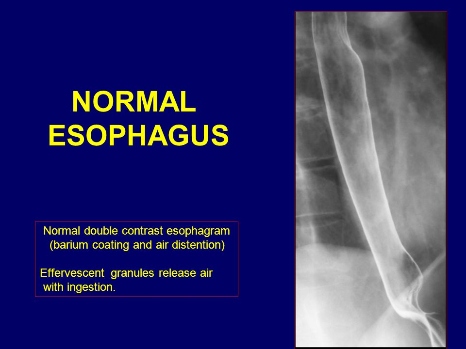 NORMAL ESOPHAGUS Normal double contrast esophagram