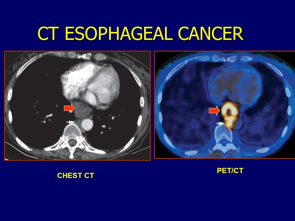 CT ESOPHAGEAL CANCER PET/CT CHEST CT