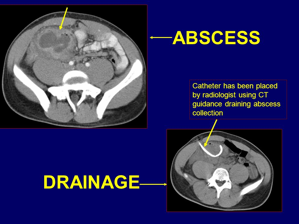 ABSCESS Catheter has been placed by radiologist using CT guidance draining abscess collection. DRAINAGE.