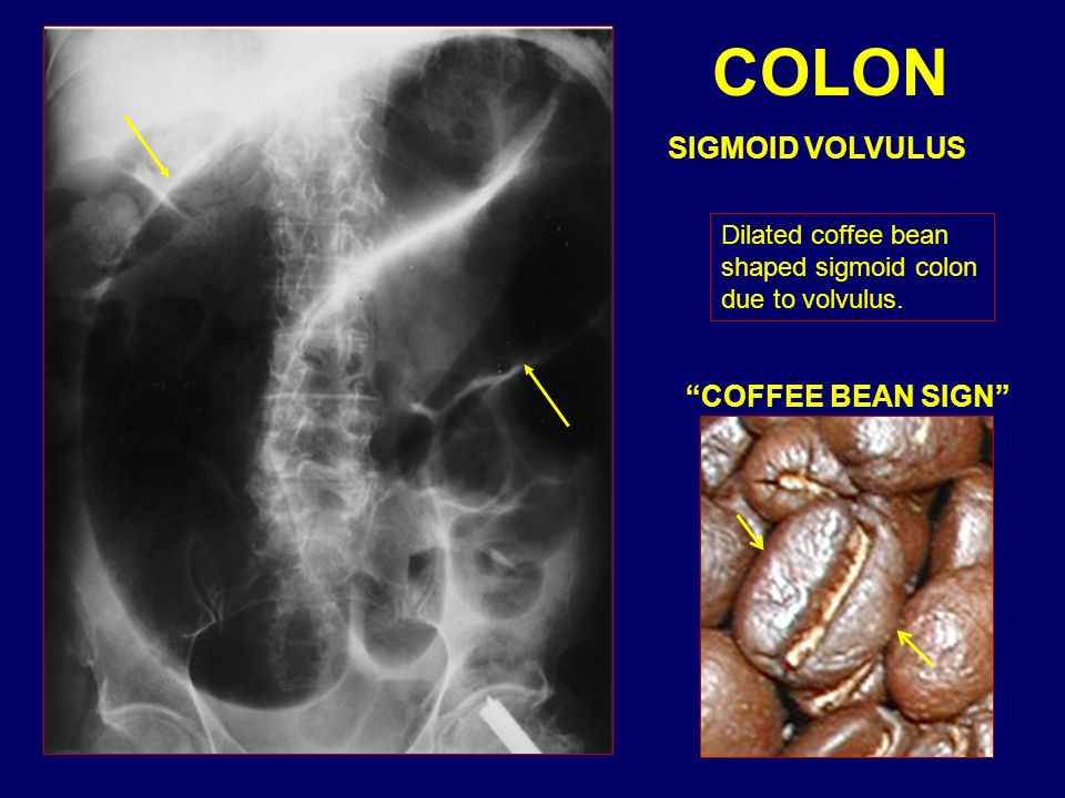 COLON SIGMOID VOLVULUS COFFEE BEAN SIGN