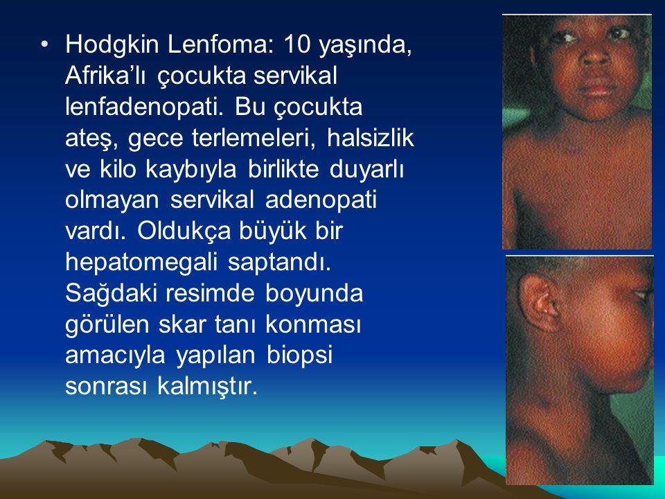 Hodgkin Lenfoma: 10 yaşında, Afrika'lı çocukta servikal lenfadenopati