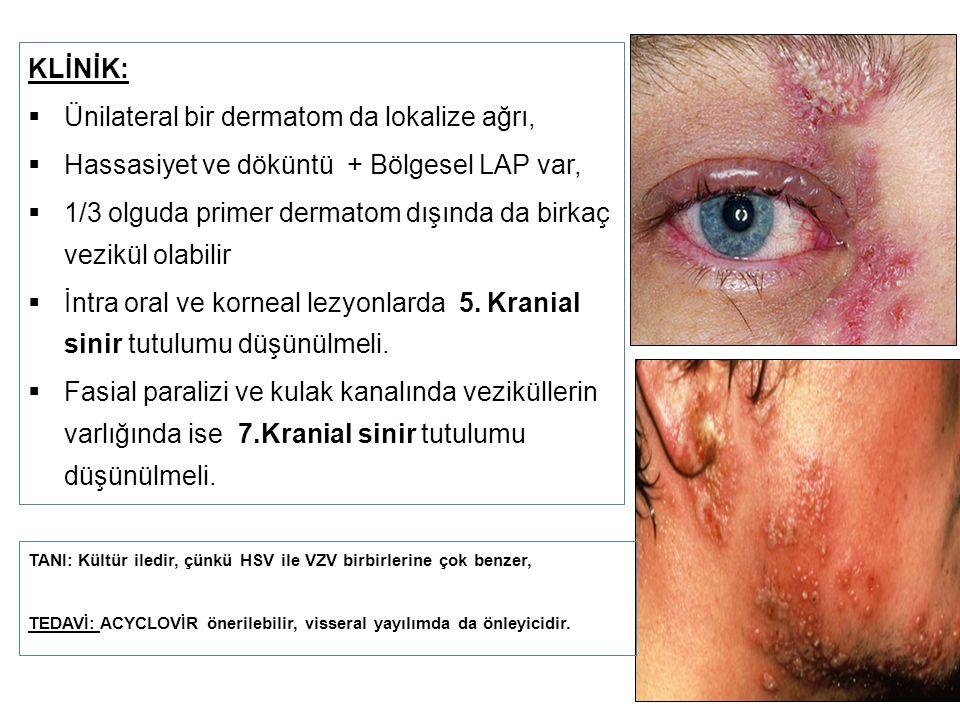 Ünilateral bir dermatom da lokalize ağrı,
