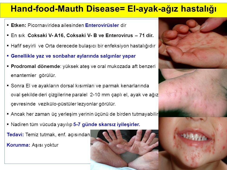 Hand-food-Mauth Disease= El-ayak-ağız hastalığı