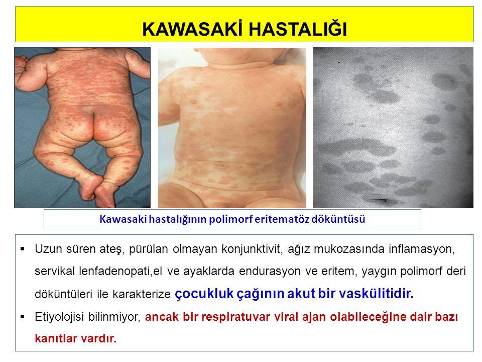 Kawasaki hastalığının polimorf eritematöz döküntüsü