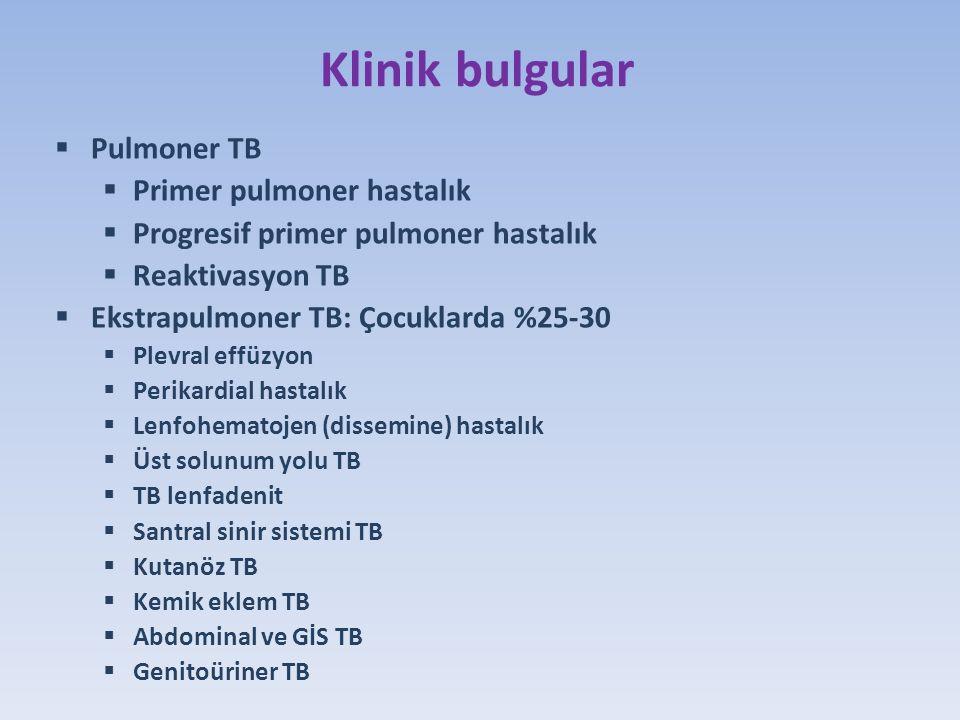 Klinik bulgular Pulmoner TB Primer pulmoner hastalık