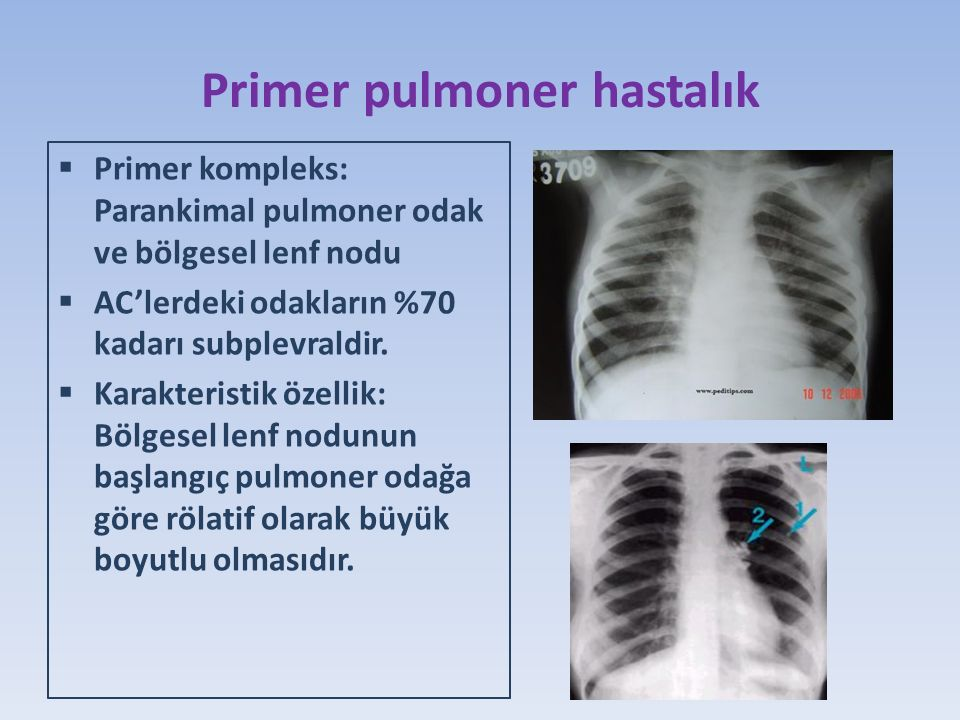 Primer pulmoner hastalık