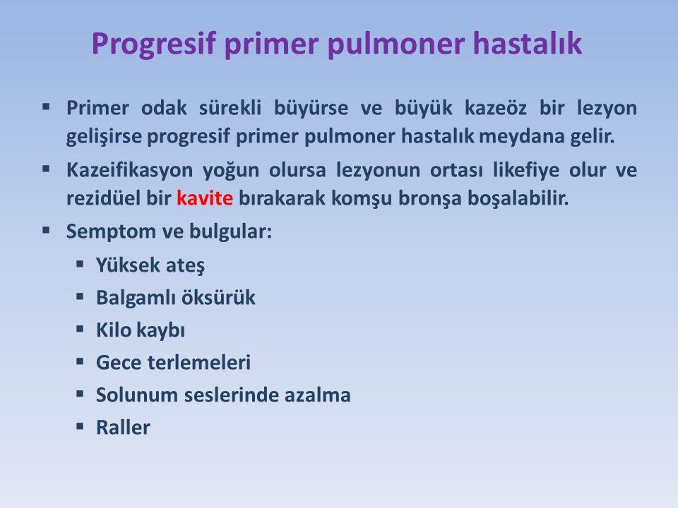Progresif primer pulmoner hastalık