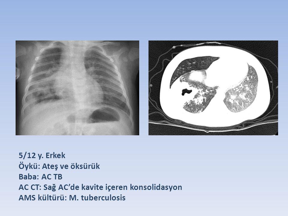 AC CT: Sağ AC'de kavite içeren konsolidasyon