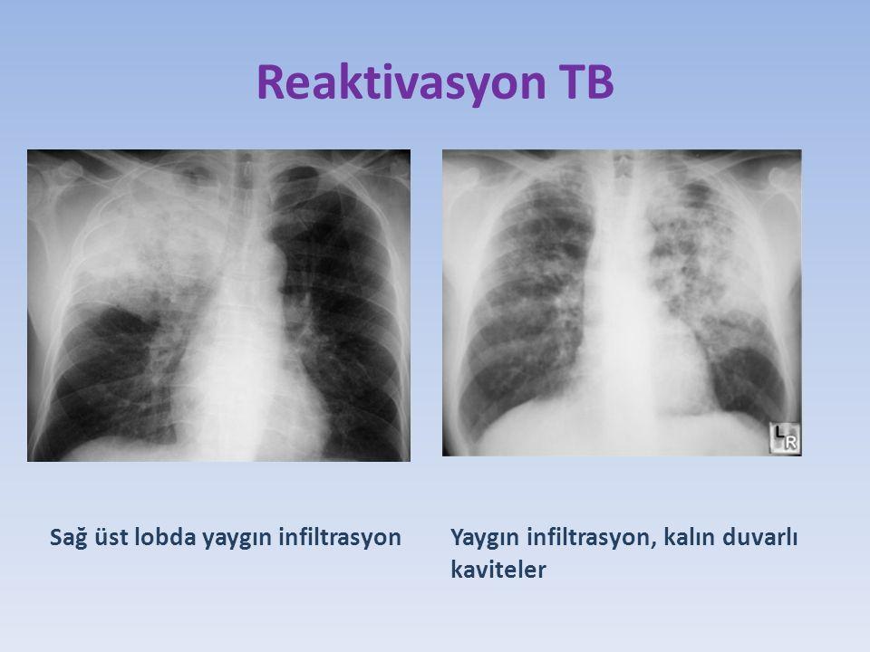 Reaktivasyon TB Sağ üst lobda yaygın infiltrasyon