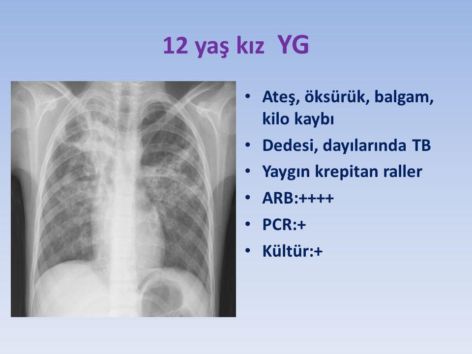 12 yaş kız YG Ateş, öksürük, balgam, kilo kaybı Dedesi, dayılarında TB