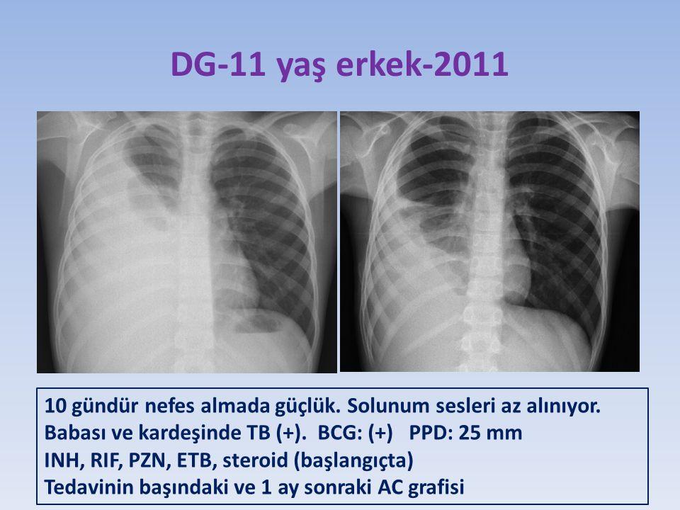 DG-11 yaş erkek-2011 10 gündür nefes almada güçlük. Solunum sesleri az alınıyor. Babası ve kardeşinde TB (+). BCG: (+) PPD: 25 mm.