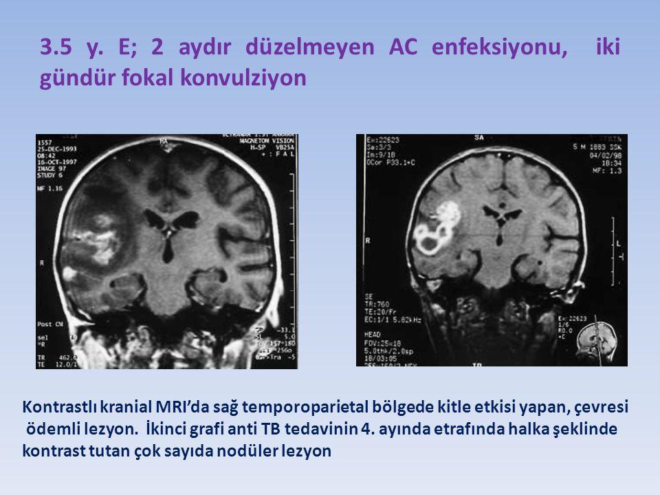 3.5 y. E; 2 aydır düzelmeyen AC enfeksiyonu, iki gündür fokal konvulziyon