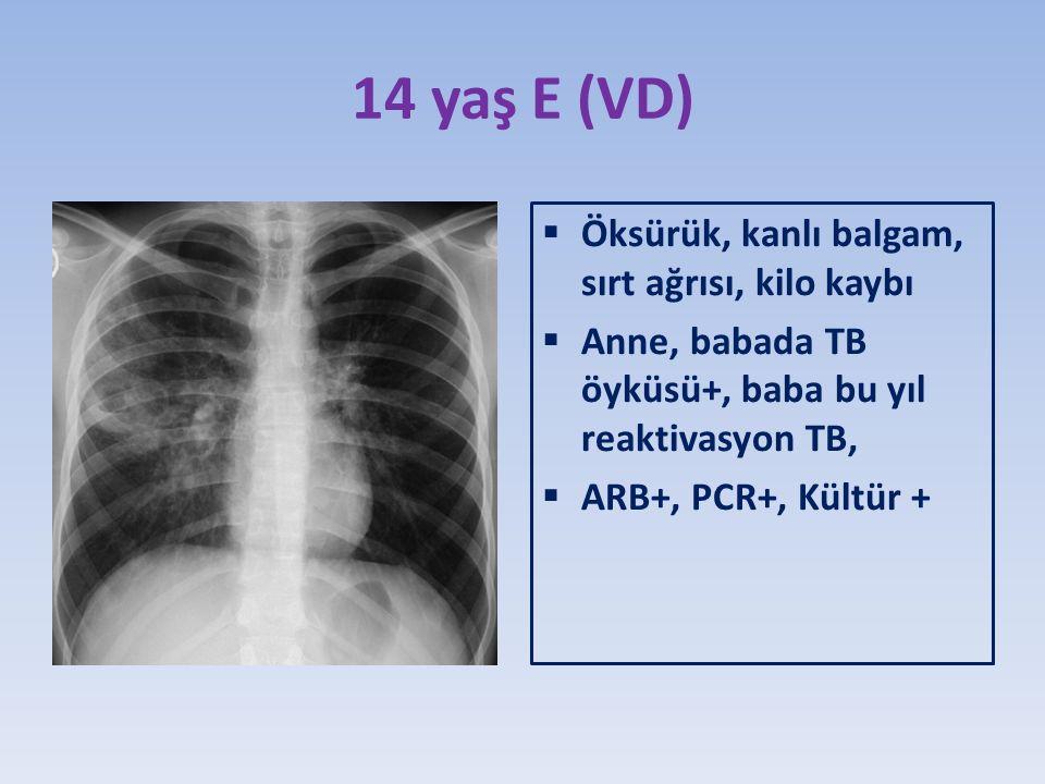 14 yaş E (VD) Öksürük, kanlı balgam, sırt ağrısı, kilo kaybı