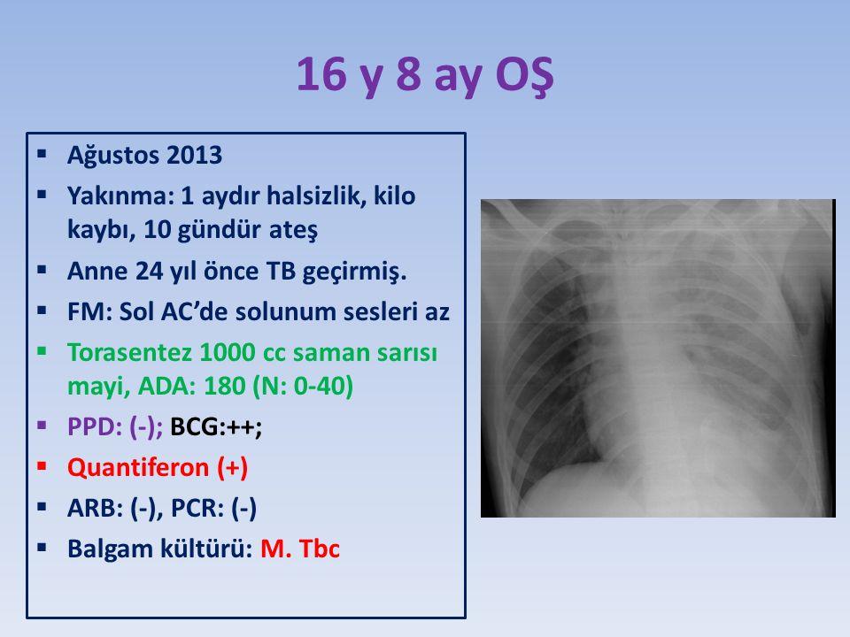 16 y 8 ay OŞ Ağustos 2013. Yakınma: 1 aydır halsizlik, kilo kaybı, 10 gündür ateş. Anne 24 yıl önce TB geçirmiş.