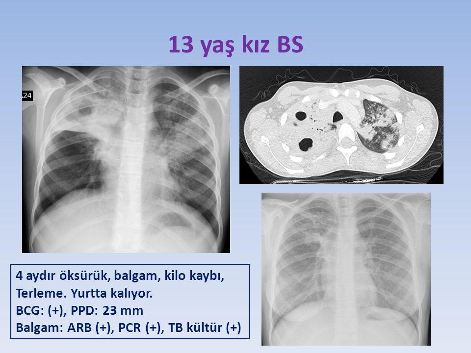13 yaş kız BS 4 aydır öksürük, balgam, kilo kaybı,