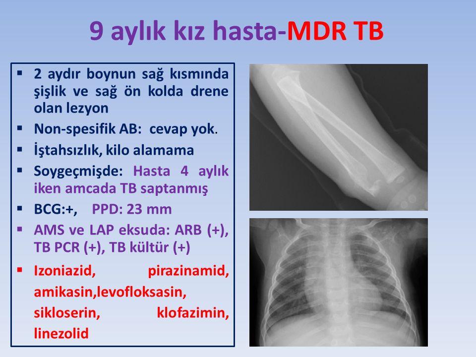 9 aylık kız hasta-MDR TB 2 aydır boynun sağ kısmında şişlik ve sağ ön kolda drene olan lezyon. Non-spesifik AB: cevap yok.