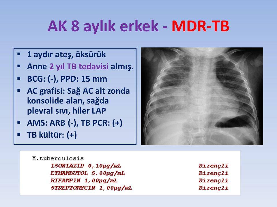 AK 8 aylık erkek - MDR-TB 1 aydır ateş, öksürük
