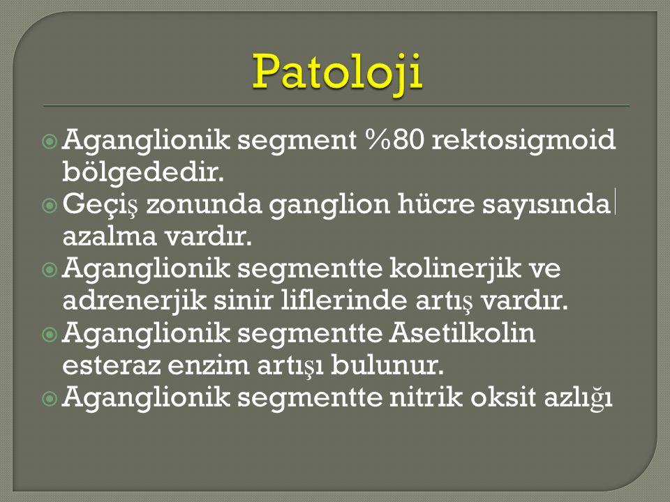Patoloji Aganglionik segment %80 rektosigmoid bölgededir.
