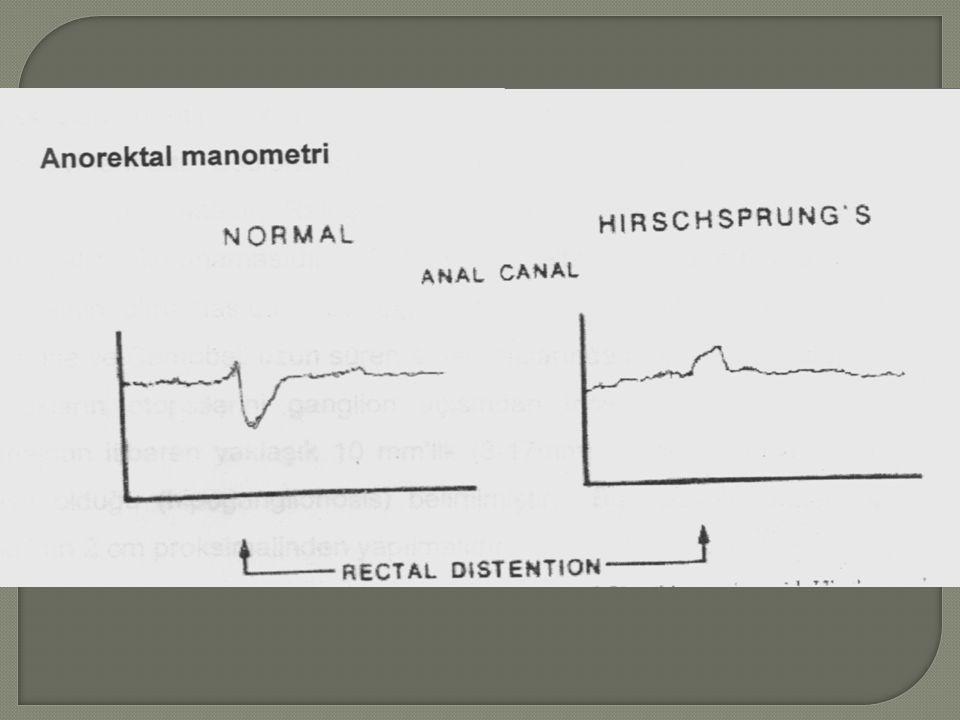 Anorektal manometri grafiğinde Hirschspronu hastalığında rektal distansiyon sonrası gevşemenin olmaması görülmekte.