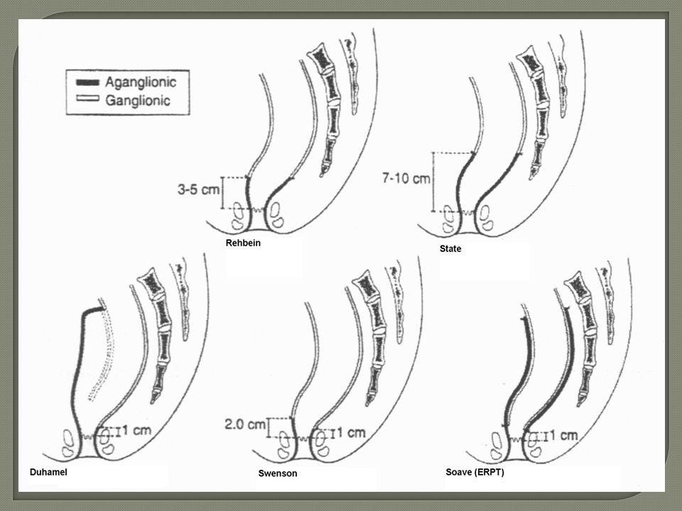 Hirschsprung hastalığı tedavisi için önerilen cerrahi tekniklerin tümünün ortak noktası; aganglionik segmentin çıkarılarak ganglionik kolon parçasının aşağıya çekilmesi esasına dayanmaktadır.