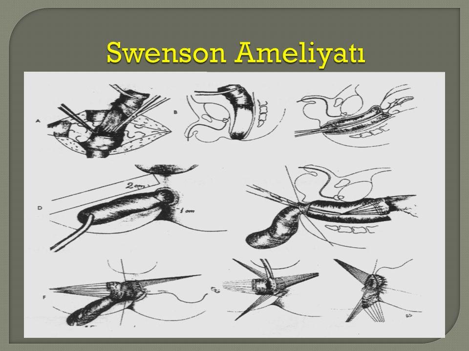 Swenson Ameliyatı