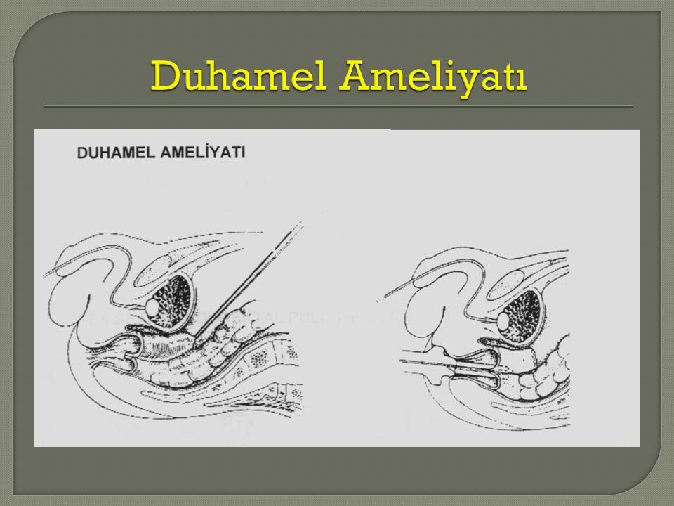 Duhamel Ameliyatı
