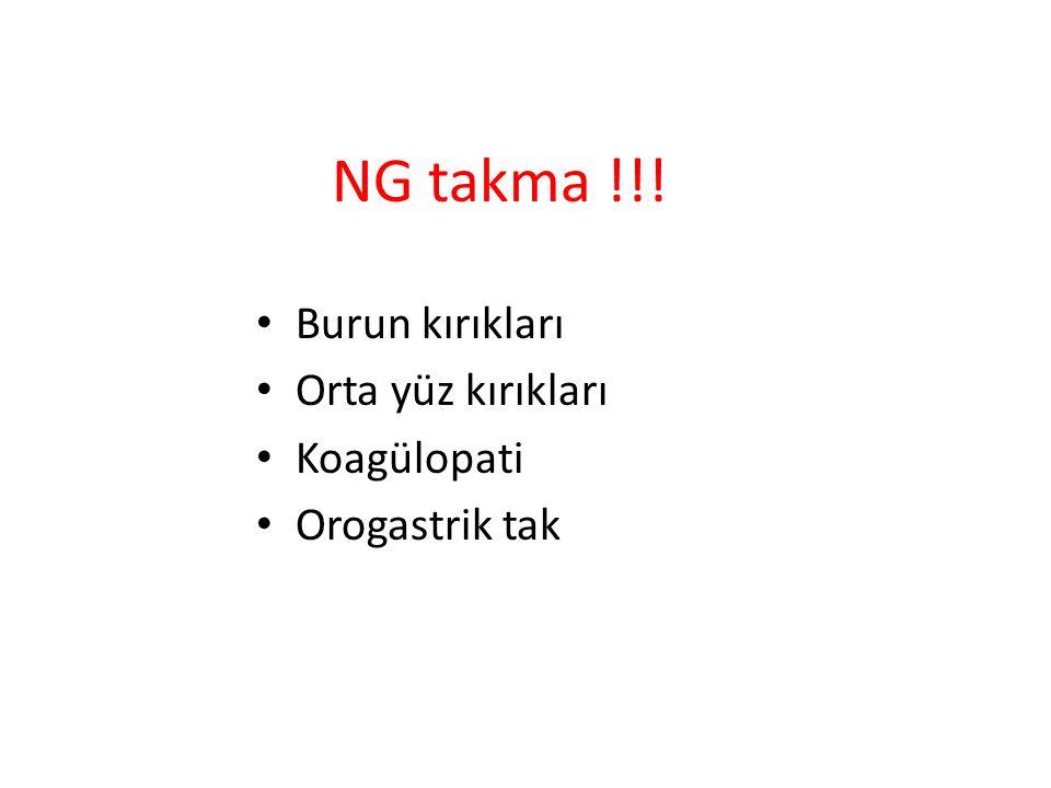 NG takma !!! Burun kırıkları Orta yüz kırıkları Koagülopati
