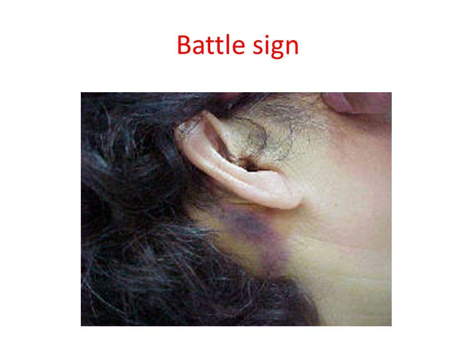 Battle sign