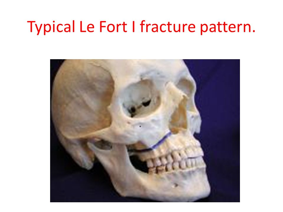 Typical Le Fort I fracture pattern.